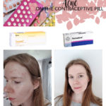 My Experience With Acne On The Contraceptive Pill {Both Combined and POP} | Annie's Noms