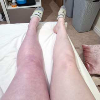 """Recovering from """"extensive"""" blood clots - Why I've been MIA 