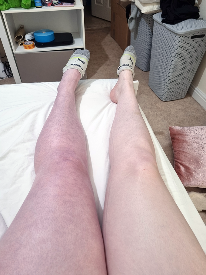Recovering from PCD blood clots - Why I've been MIA | Annie's Noms